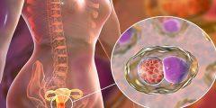 أعراض وعلاج مرض السيلان عند النساء