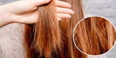 علاج تلف الشعر بوصفات طبيعية في وقت قصير